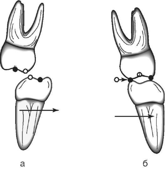 Освобождение челюстей от зажима
