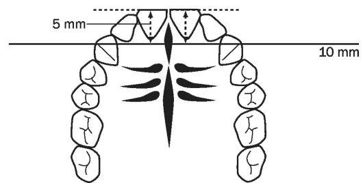 боковых зубов по отношению