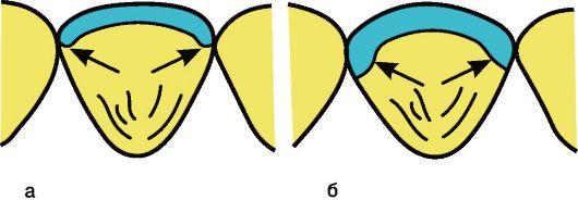 Рис. 1-13. . Препарирование апроксимальных поверхностей под винир: а - гра